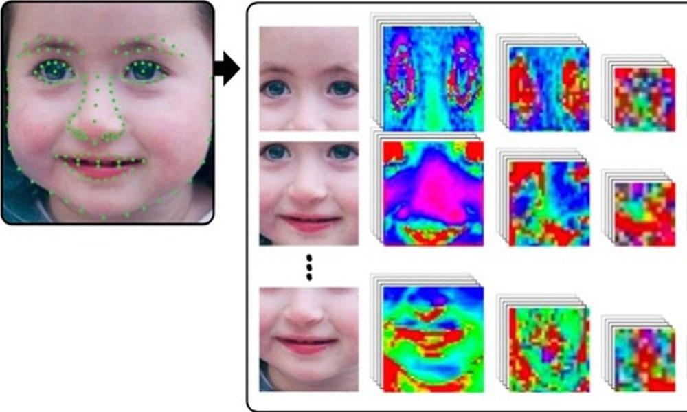 La Inteligencia Artificial ayuda a diagnosticar síndromes genéticos raros